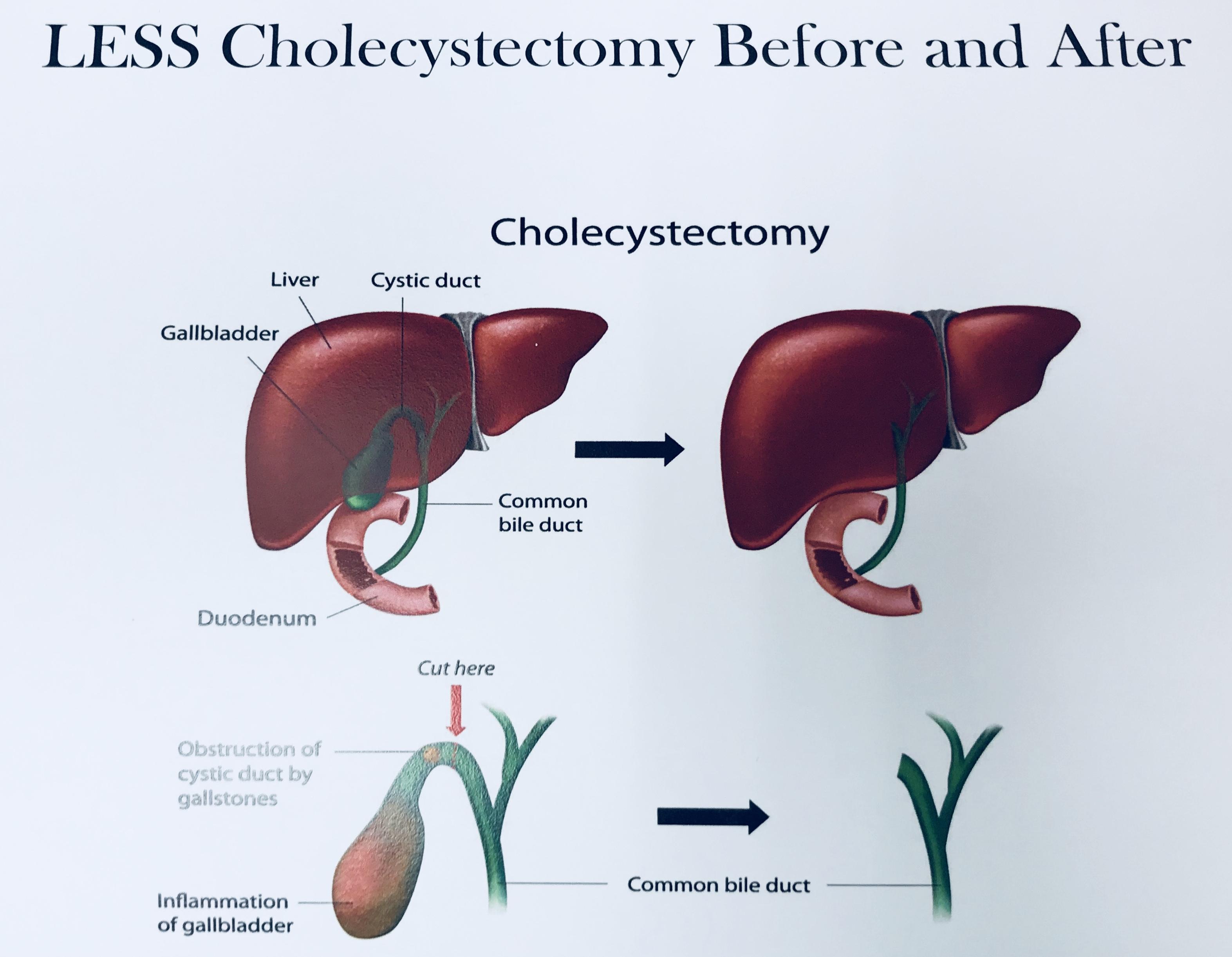 Gallbladder Surgery Cholecystectomy